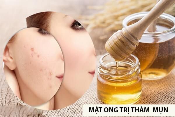 dieu-tri-tham-mun-bang-phuong-phap-tu-nhien-min